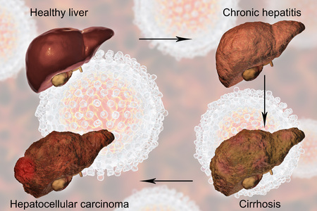 fibrosis: Liver disease progression in Hepatitis C virus infection, 3D illustration Stock Photo