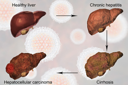 Liver disease progression in Hepatitis C virus infection, 3D illustration Stock Photo