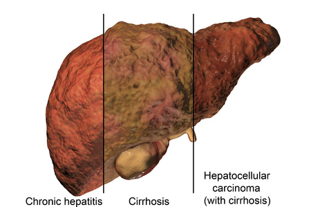 Liver disease progression in Hepatitis B and C viral infection, 3D illustration Stock Illustration - 83543026
