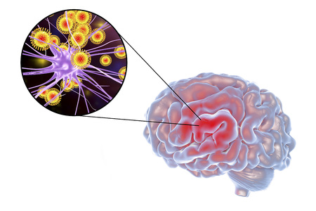 influenza: Viral encephalitis, 3D illustration showing brain and close-up view of viruses amd neurons