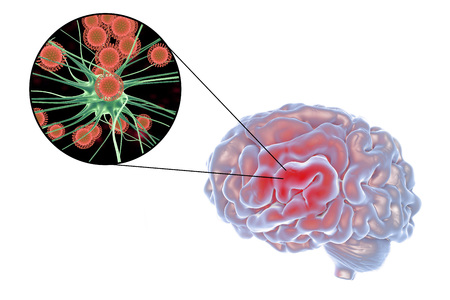 wścieklizna: Viral encephalitis, 3D illustration showing brain and close-up view of viruses amd neurons