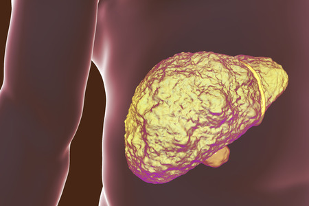 Liver with cirrhosis inside human body. 3D illustration