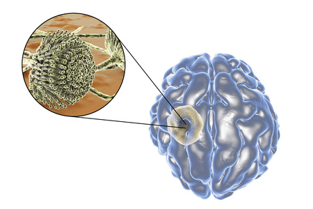 cyst: Aspergilloma of the brain and close-up view of fungi Aspergillus, 3D illustration. An intracranial lesion produced by fungi Aspergillus in immunocompromised patients Stock Photo