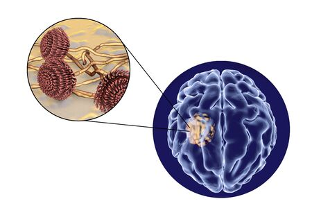 Aspergilloma of the brain and close-up view of fungi Aspergillus, 3D illustration. An intracranial lesion produced by fungi Aspergillus in immunocompromised patients Stock Photo