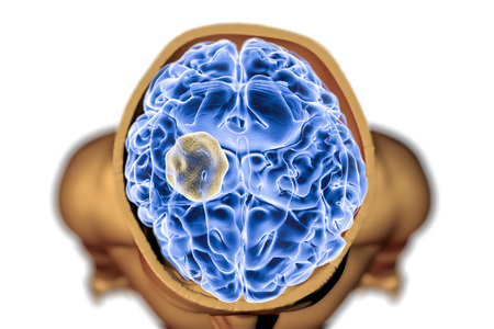 Aspergilloma of the brain, 3D illustration. Also known as mycetoma, or fungus ball, an intracranial lesion produced by fungi Aspergillus in immunocompromised patients Stock Photo