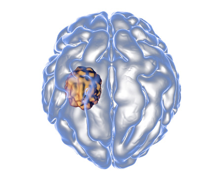 lesion: Aspergilloma of the brain, 3D illustration. Also known as mycetoma, or fungus ball, an intracranial lesion produced by fungi Aspergillus in immunocompromised patients Stock Photo