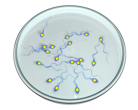 Spermatozoans in Petri dish, concept of artificial fertilization, 3D illustration