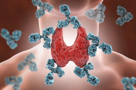 Autoimmune thyroiditis, Hashimoto's disease. 3D illustration showing antibodies attacking thyroid gland Stock Photo
