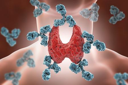 Tiroiditis autoinmune, enfermedad de Hashimoto. Ilustración 3D que muestra anticuerpos que atacan la glándula tiroides Foto de archivo - 85054432