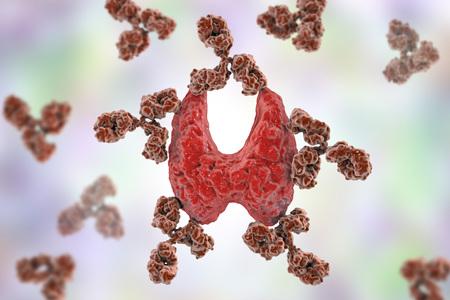 Autoimmune thyroiditis, Hashimotos disease. 3D illustration showing antibodies attacking thyroid gland