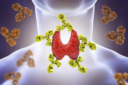Tiroidite autoimmune, malattia di Hashimoto. Illustrazione 3D che mostra gli anticorpi che attaccano la ghiandola tiroide