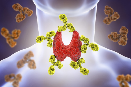 Autoimmune thyroiditis, Hashimotos disease. 3D illustration showing antibodies attacking thyroid gland