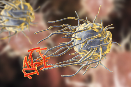 Macrophage engulfing tuberculosis bacteria Mycobacterium tuberculosis, 3D illustration