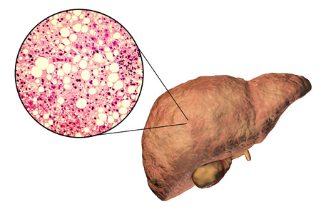 Fatty liver, liver steatosis, 3D illustration and photomicrograph showing large vacuoles of triglyceride fat accumulated inside liver cells, it occurs in alcohol overuse, under action of toxins Stockfoto