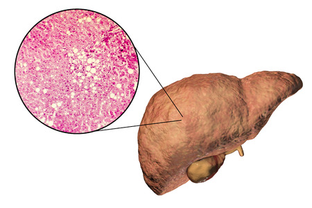 Fatty liver, liver steatosis, 3D illustration and photomicrograph showing large vacuoles of triglyceride fat accumulated inside liver cells, it occurs in alcohol overuse, under action of toxins Stock Photo