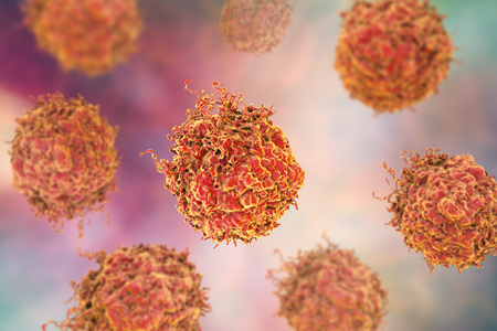 Prostate cancer cells, 3D illustration. Prostate cancer awareness image