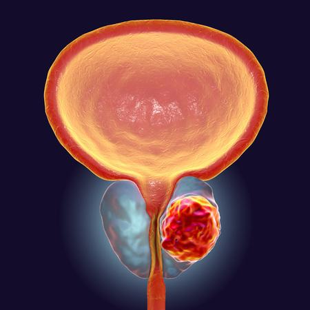 Prostate cancer, 3D illustration showing presence of tumor inside prostate gland which compresses urethra Zdjęcie Seryjne
