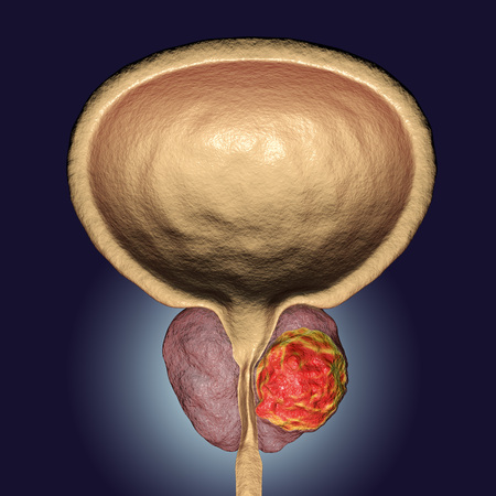 Prostate cancer, 3D illustration showing presence of tumor inside prostate gland which compresses urethra Stock Photo