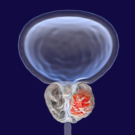 Prostate cancer, 3D illustration showing presence of tumor inside prostate gland which compresses urethra Standard-Bild