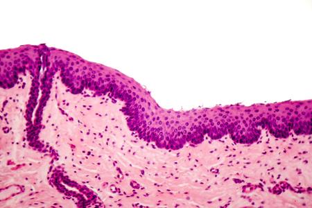 人間は、顕微鏡、光学顕微鏡像扁平上皮
