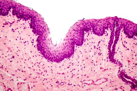 esofago: Epitelio escamoso estratificado humano bajo microscopio, micrografía de luz Foto de archivo