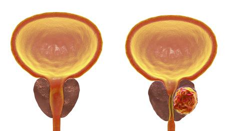 Prostate cancer, 3D illustration showing normal prostate gland and presence of tumor inside prostate gland which compresses urethra. Unlabeled image