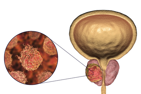 Prostate cancer, 3D illustration showing tumor inside prostate gland and closeup view of cancer cells