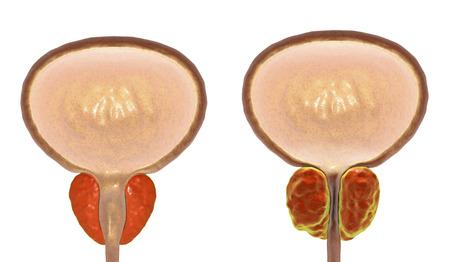 Benign prostatic hyperplasia, 3D illustration showing normal and enlarged prostate gland