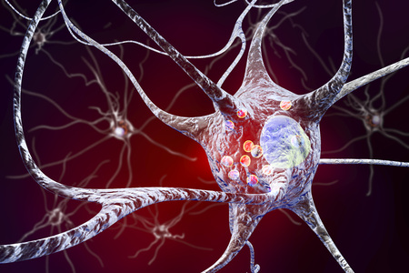 Parkinsons disease. 3D illustration showing neurons containing Lewy bodies small red spheres which are deposits of proteins accumulated in brain cells that cause their progressive degeneration