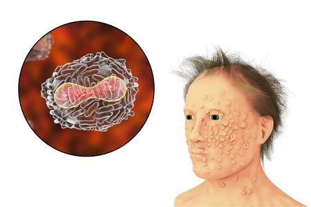 epidemy: A man with smallpox infection and variola virus, a virus from Orthopoxviridae family that causes smallpox, highly contagious disease eradicated by vaccination, 3D illustration Stock Photo