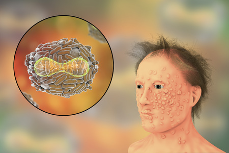 A man with smallpox infection and variola virus, a virus from Orthopoxviridae family that causes smallpox, highly contagious disease eradicated by vaccination, 3D illustration Stock Photo