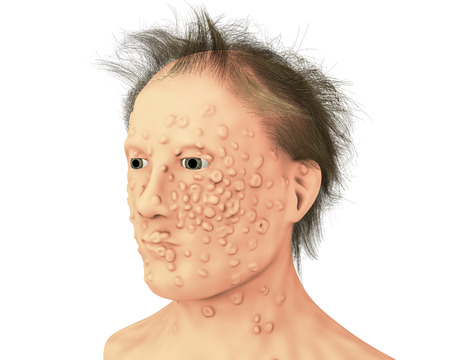 A man with smallpox infection. This infections is caused by variola virus, a virus from Orthopoxviridae family, it is highly contagious disease eradicated by vaccination, 3D illustration Stock Photo