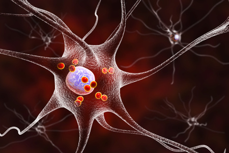 neurone: Parkinsons disease. 3D illustration showing neurons containing Lewy bodies small red spheres which are deposits of proteins accumulated in brain cells that cause their progressive degeneration