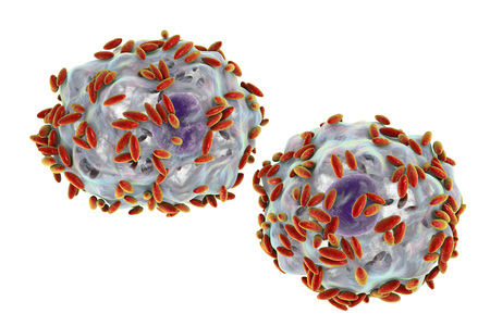 Microscopic diagnosis of bacterial vaginosis. Vaginal secretions contain epithelial cells, so-called clue cells covered with bacteria Gardnerella vaginalis, 3D illustration Stock Photo