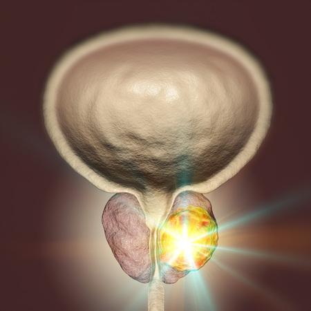 Conceptual image for prostate cancer treatment, 3D illustration showing destruction of a tumor inside prostate gland Stock Photo