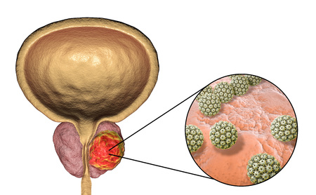 Conceptual image for viral ethiology of prostate cancer. 3D illustration showing Human Papilloma Viruses HPV infecting prostate gland which develops cancerous tumor