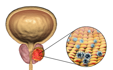 Conceptual image for viral ethiology of prostate cancer. 3D illustration showing viruses infecting prostate gland which develops cancerous tumor