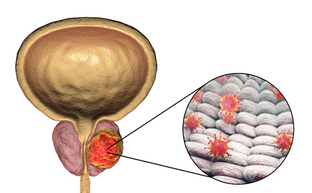 uretra: Conceptual image for viral ethiology of prostate cancer. 3D illustration showing viruses infecting prostate gland which develops cancerous tumor