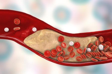 Cholesterol plaque in artery, 3D illustration. Concept for coronary artery disease Zdjęcie Seryjne