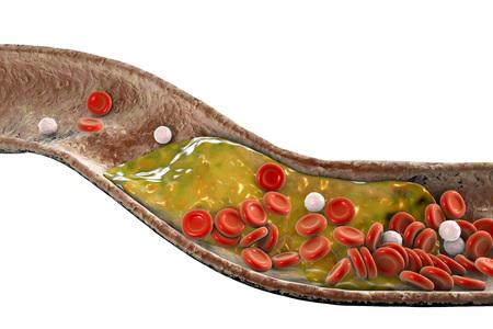 Cholesterolplaque in slagader, 3D illustratie. Concept voor coronaire hartziekte