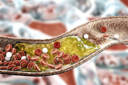 Cholesterol plaque in artery, 3D illustration. Concept for coronary artery disease Stock Photo