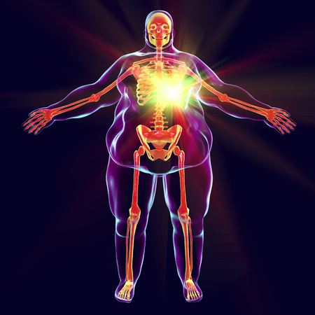 Heart disease in obesity, conceptual image, 3D illustration