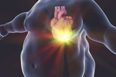 Heart Disease In A Person With Obesity, Conceptual Image. 3D.. Stock ...