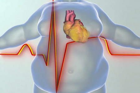 Heart disease in a person with obesity, conceptual image. 3D illustration showing increased weight man with obese heart and ECG of myocardial infarction Stock Photo