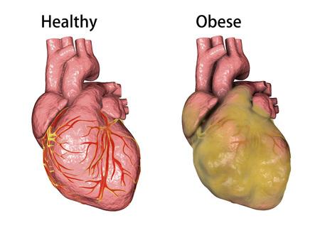 Gezond en zwaarlijvig hart dat op witte achtergrond, 3D illustratie wordt geïsoleerd Stockfoto