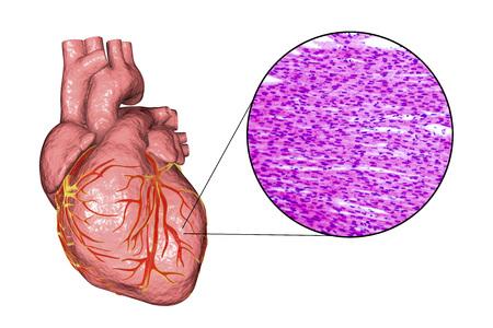 Corazón humano y micrografía con vista de cerca de la estructura del músculo cardíaco, ilustración 3D y foto bajo el microscopio
