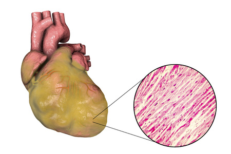 Obese heart with left ventricular hypertrophy, 3D illustration and micrograph Stock Photo