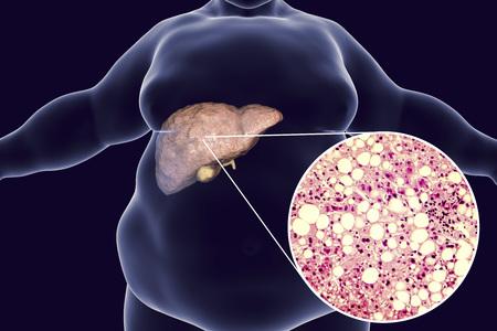 Homem obeso com fígado gordo, ilustração 3D e fotomicrografia da esteatose hepática. Imagem conceitual para doença hepática gordurosa não alcoólica