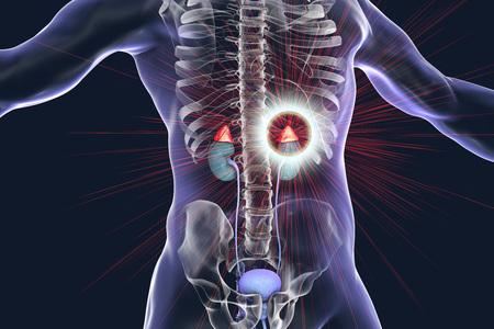 Adrenal glands pathology treatment and prevention concept, 3D illustration