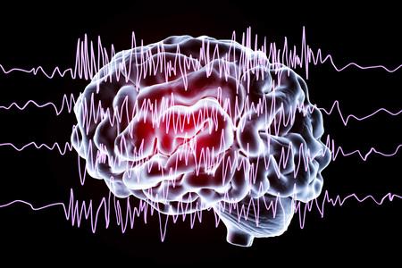 Epilepsie bewustzijn concept. Hersenen en encefalografie bij epilepsiepatiënt tijdens aanval aanval, 3D illustratie in paarse kleur